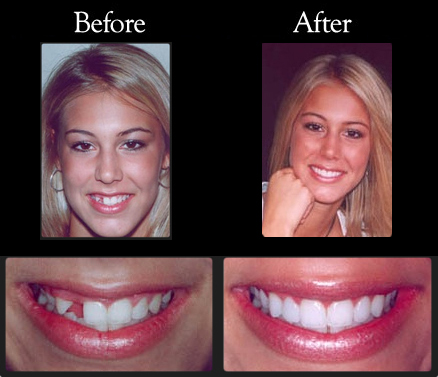 Olympia Dentist - Before and After cases